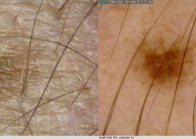 Lesion dermascope