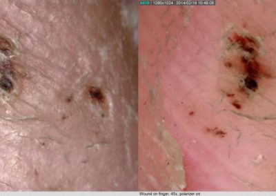 Lesion dermascope2